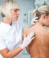 Laseroterapia, usuwanie znamion Zabrze