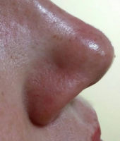 medycyna estetyczna gliwice